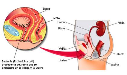 Cistitis sin antibióticos